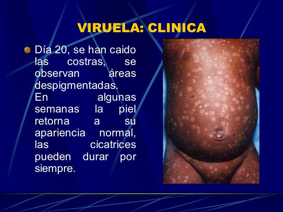 VIRUELA: CLINICA La densidad de las lesiones es más en la cara que en el tronco y las extremidades.