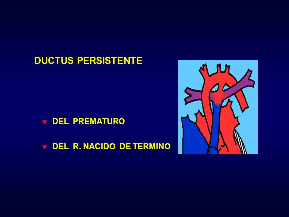DEL PREMATURO DEL R. NACIDO DE TERMINO DUCTUS PERSISTENTE