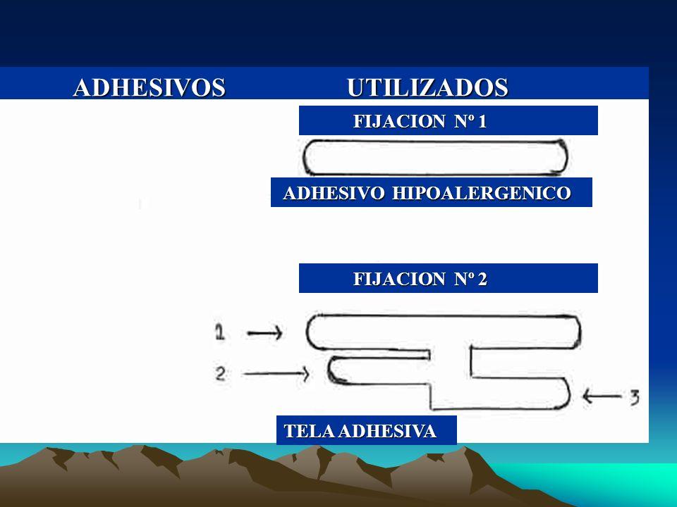ADHESIVOS UTILIZADOS FIJACION Nº 1 ADHESIVO HIPOALERGENICO FIJACION Nº 2 TELA ADHESIVA