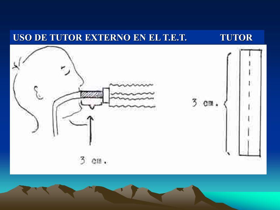 USO DE TUTOR EXTERNO EN EL T.E.T. TUTOR