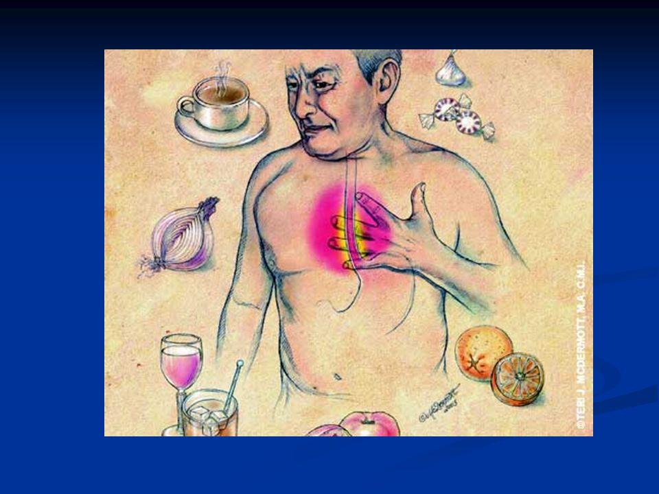 El ácido del estómago refluye hacia el esófago produciendo lesiones en la mucosa Esfínter gastroesofágico normal (contraído) impidiendo la salida del ácido del estómago