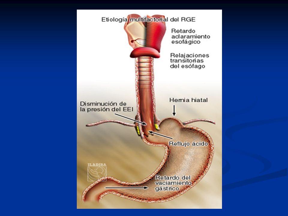 Antagonistas de receptores H 2 Tratamiento leve a moderado del ERGE.