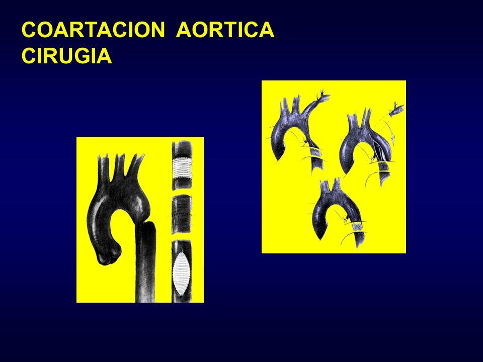 COARTACION AORTICA CIRUGIA