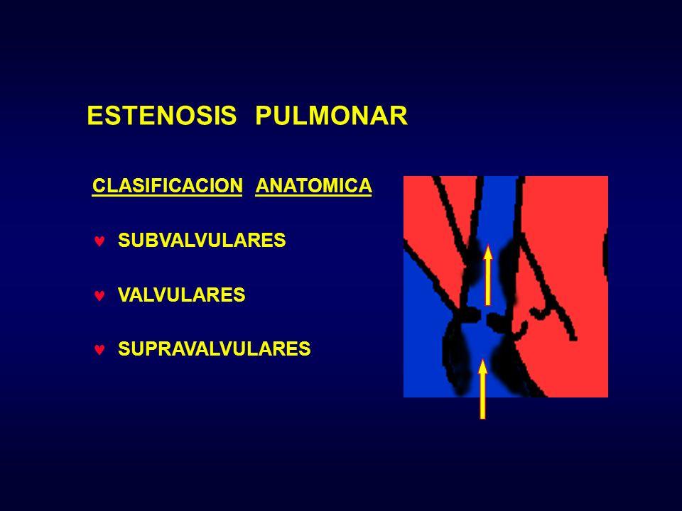 ESTENOSIS PULMONAR CLASIFICACION ANATOMICA SUBVALVULARES VALVULARES SUPRAVALVULARES