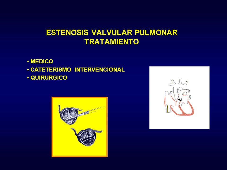 MEDICO CATETERISMO INTERVENCIONAL QUIRURGICO ESTENOSIS VALVULAR PULMONAR TRATAMIENTO