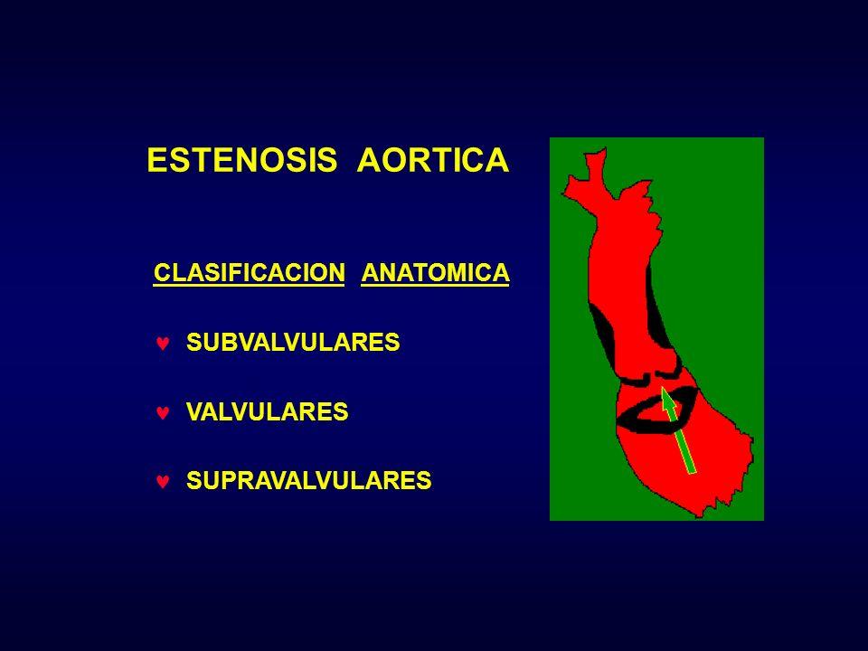 ESTENOSIS AORTICA CLASIFICACION ANATOMICA SUBVALVULARES VALVULARES SUPRAVALVULARES