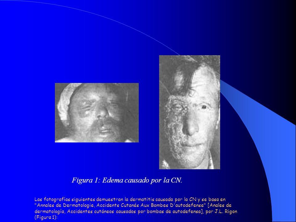 Figura 1: Edema causado por la CN. Las fotografías siguientes demuestran la dermatitis causada por la CN y se basa en
