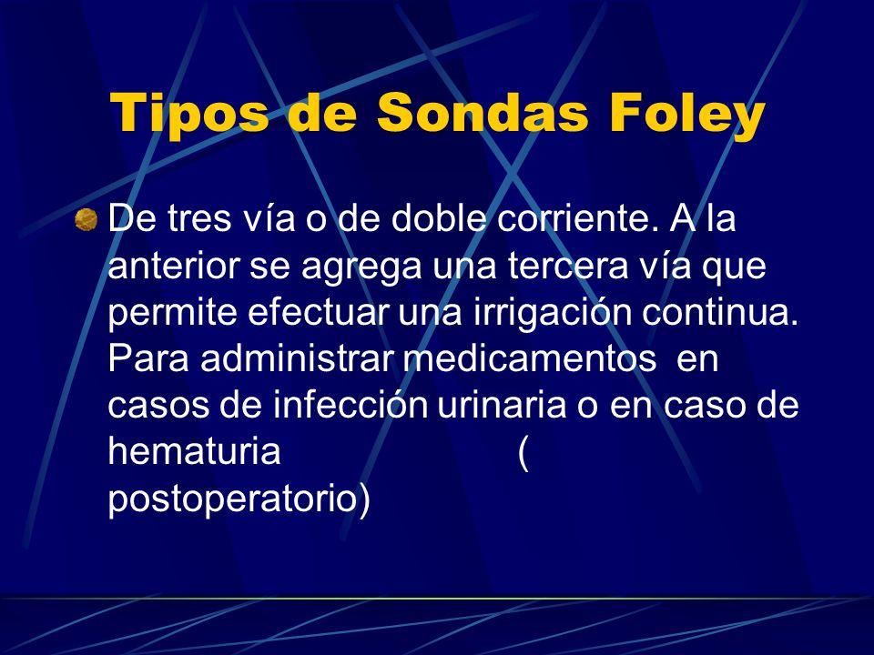 Tipos de Sondas Foley De tres vía o de doble corriente. A la anterior se agrega una tercera vía que permite efectuar una irrigación continua. Para adm