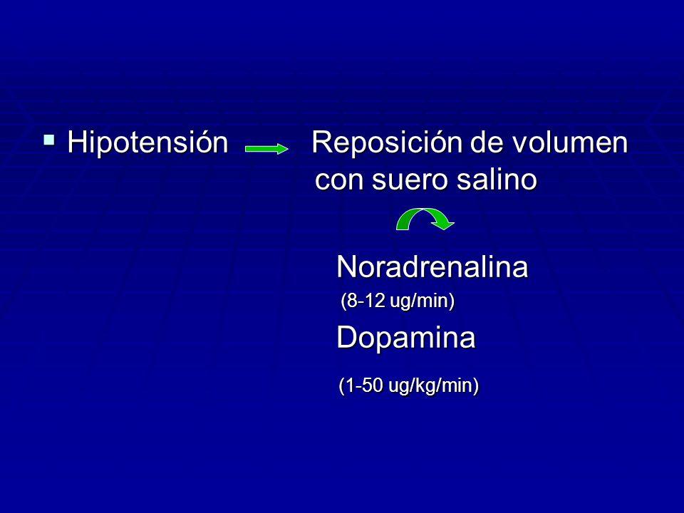 Hipotensión Reposición de volumen con suero salino Hipotensión Reposición de volumen con suero salino Noradrenalina Noradrenalina (8-12 ug/min) (8-12