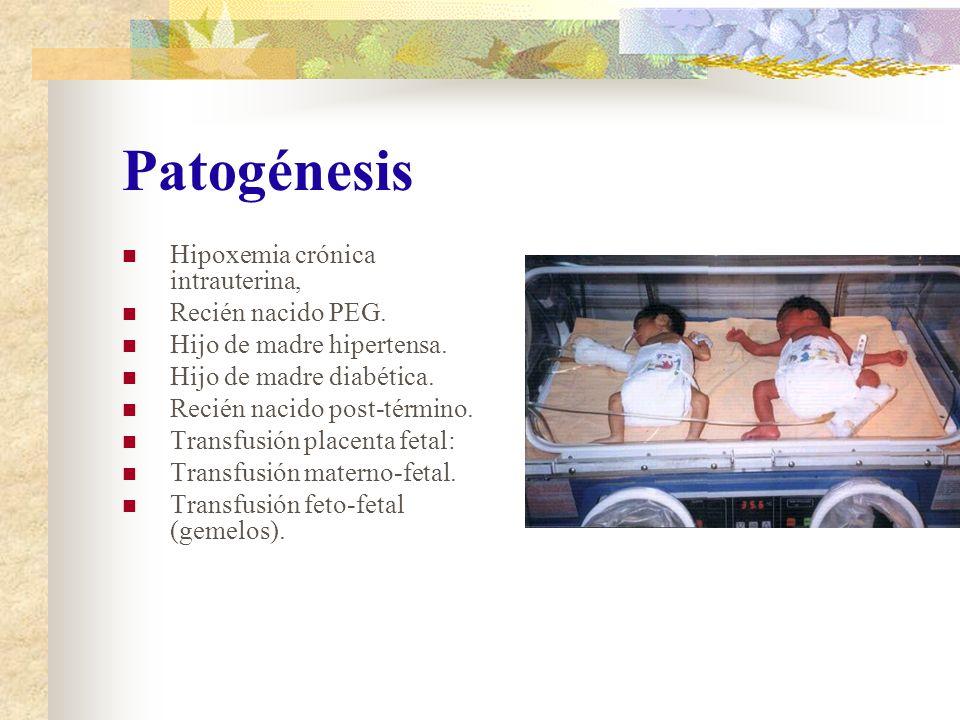 Tratamiento Eritroféresis : Recambio parcial de sangre total del recién nacido restituyéndola con otra solución.