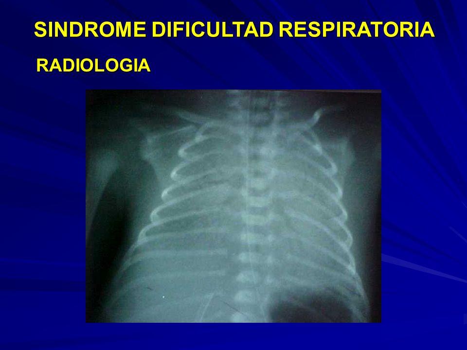 SINDROME DIFICULTAD RESPIRATORIA LABORATORIO AGA: Requerimiento de FiO2 > 0.3 para PaO2 > 50 AGA: Requerimiento de FiO2 > 0.3 para PaO2 > 50 Hipoxemia