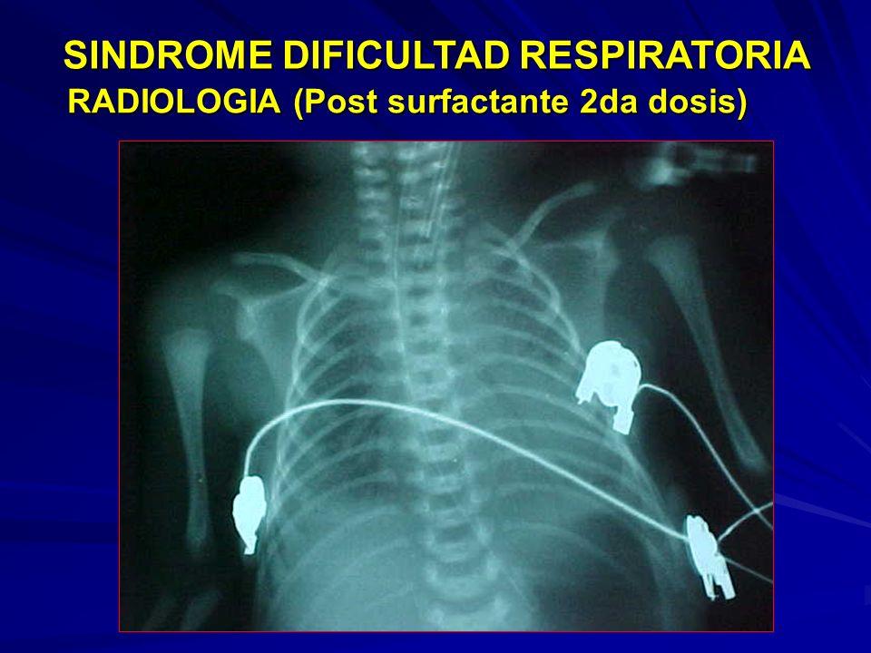 RADIOLOGIA (Post surfactante) SINDROME DIFICULTAD RESPIRATORIA