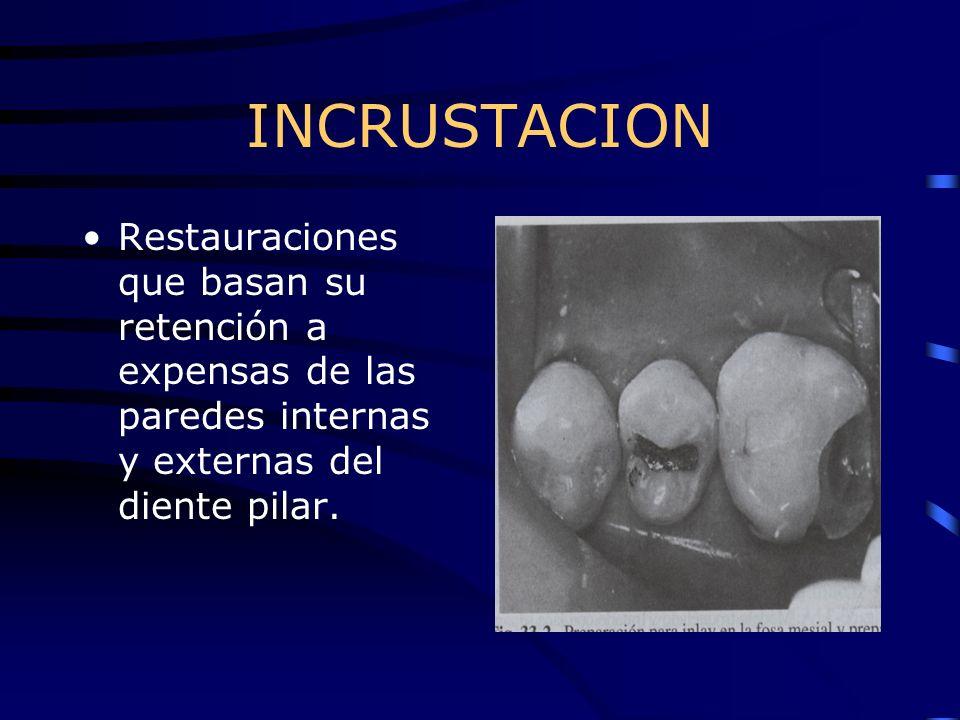 INCRUSTACION Restauraciones que basan su retención a expensas de las paredes internas y externas del diente pilar.