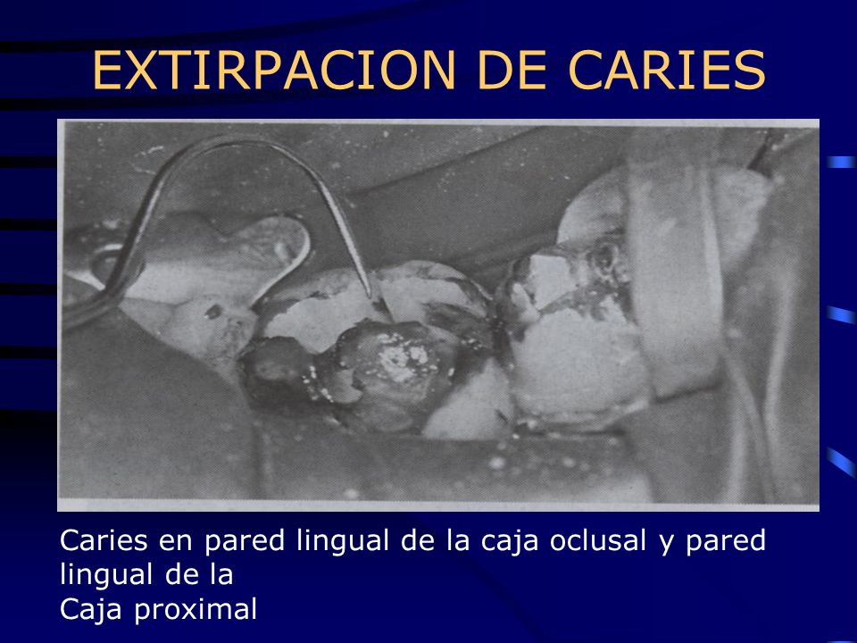 EXTIRPACION DE CARIES Caries en pared lingual de la caja oclusal y pared lingual de la Caja proximal