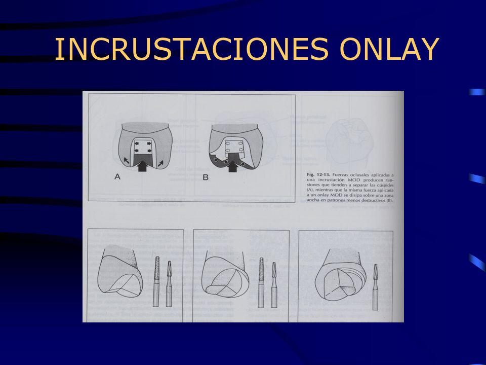 INCRUSTACIONES ONLAY