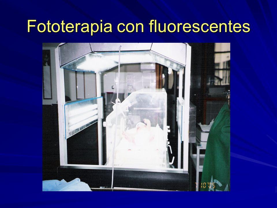 Fototerapia con fluorescentes