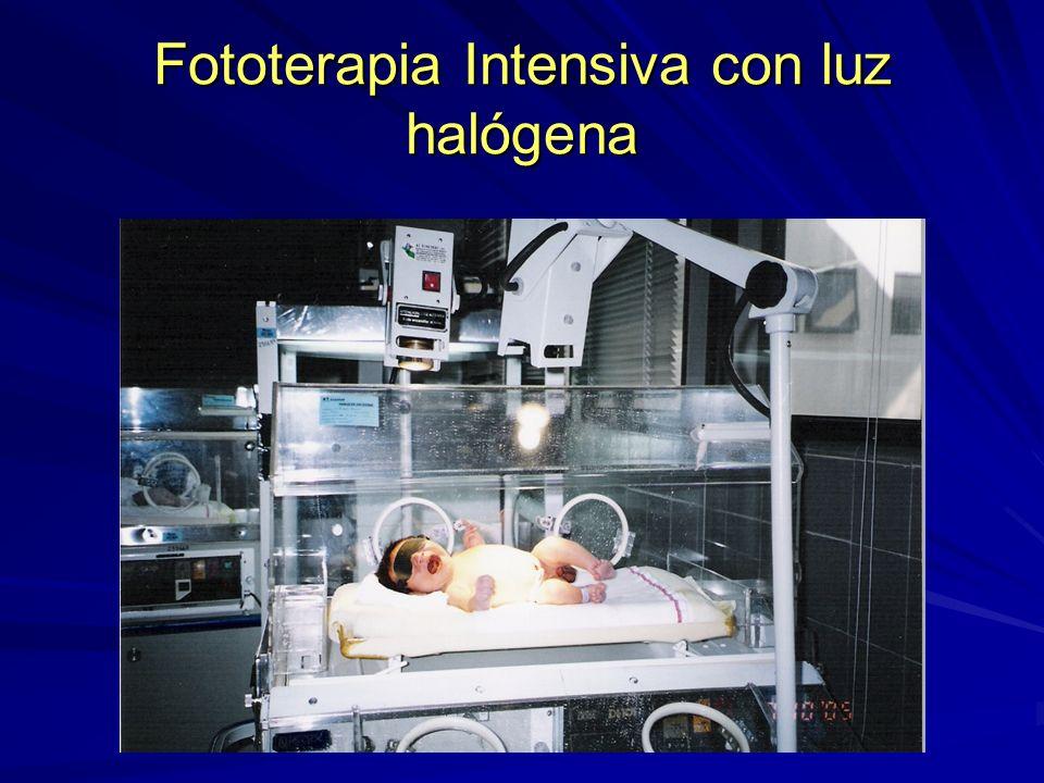 Fototerapia Intensiva con luz halógena