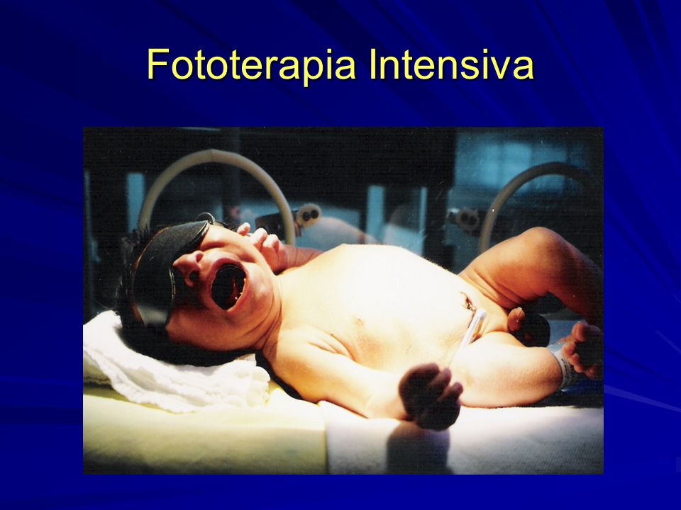 Fototerapia Intensiva