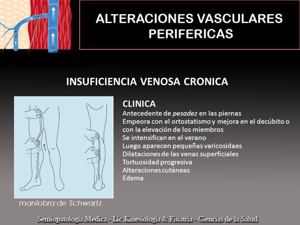 INSUFICIENCIA VENOSA CRONICA CLINICA Antecedente de pesadez en las piernas Empeora con el ortostatismo y mejora en el decúbito o con la elevación de l