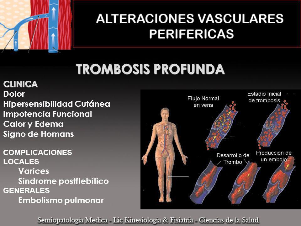 TROMBOSIS PROFUNDA CLINICA Dolor Hipersensibilidad Cutánea Impotencia Funcional Calor y Edema Signo de Homans COMPLICACIONES LOCALES Varices Sindrome