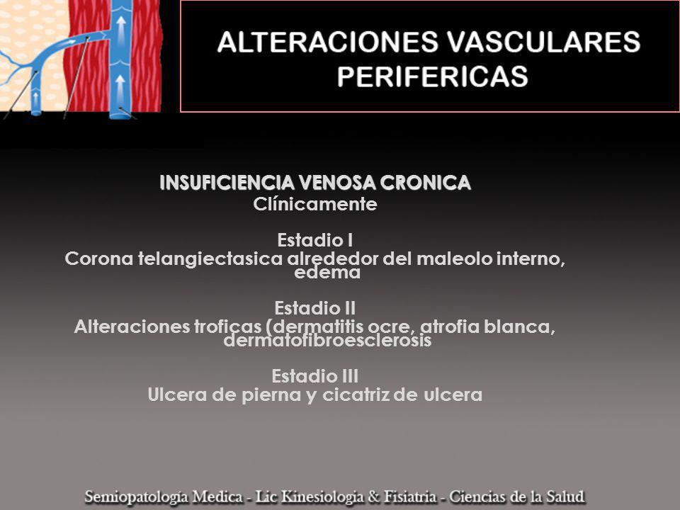 INSUFICIENCIA VENOSA CRONICA VARICES 1.Primarias 2.