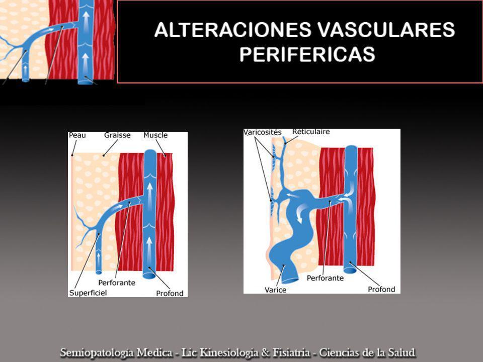 INSUFICIENCIA VENOSA CRONICA Manifestaciones Clínicas Edema Dilatación permanente y patológica de las venas (várices) Cambios en la coloración de la piel La hipertensión ruptura capilares venosos extravasación sanguinea hemosiderosis, necrosis grasa alteraciones tróficas Trombosis varicosa Linfangitis Insuficiente defensa antibacteriana cutánea (estreptococo) Lesiones erisipelatosas obstrucción linfática edema Hipoxia tisular Necrosis cutánea Ulcera Varicosa