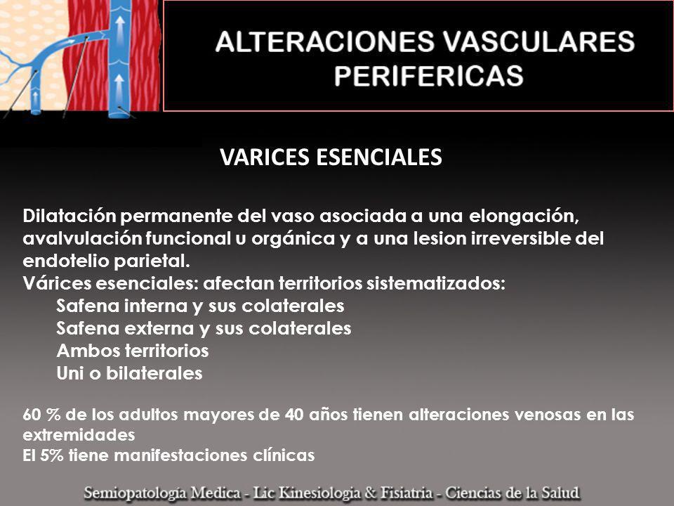 VARICES ESENCIALES Dilatación permanente del vaso asociada a una elongación, avalvulación funcional u orgánica y a una lesion irreversible del endotel