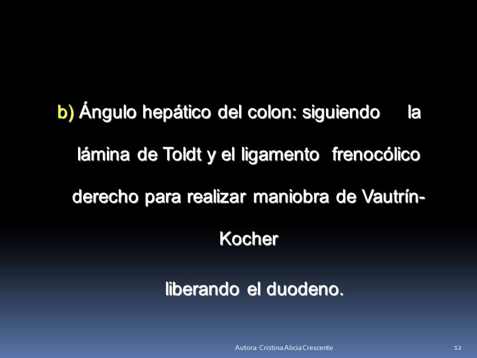Autora: Cristina Alicia Crescente 11 ESQUELETIZACIÓN DEL ESTÓMAGO. ESQUELETIZACIÓN DEL ESTÓMAGO. a) Curvatura mayor: disección, he- a) Curvatura mayor