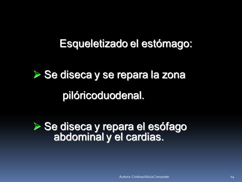 Autora: Cristina Alicia Crescente 13 c) Ligamento gastrohepático: a c) Ligamento gastrohepático: a través de él se ligan las través de él se ligan las