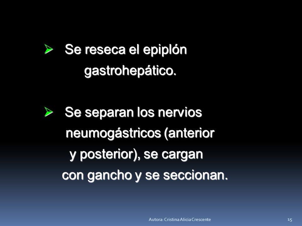 Autora: Cristina Alicia Crescente 14 Esqueletizado el estómago: Esqueletizado el estómago: Se diseca y se repara la zona Se diseca y se repara la zona