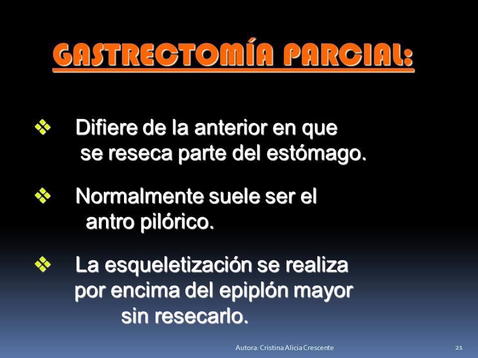 Autora: Cristina Alicia Crescente 20 Se controla la hemostasia, Se controla la hemostasia, se deja drenaje (dren) con se deja drenaje (dren) con aspir