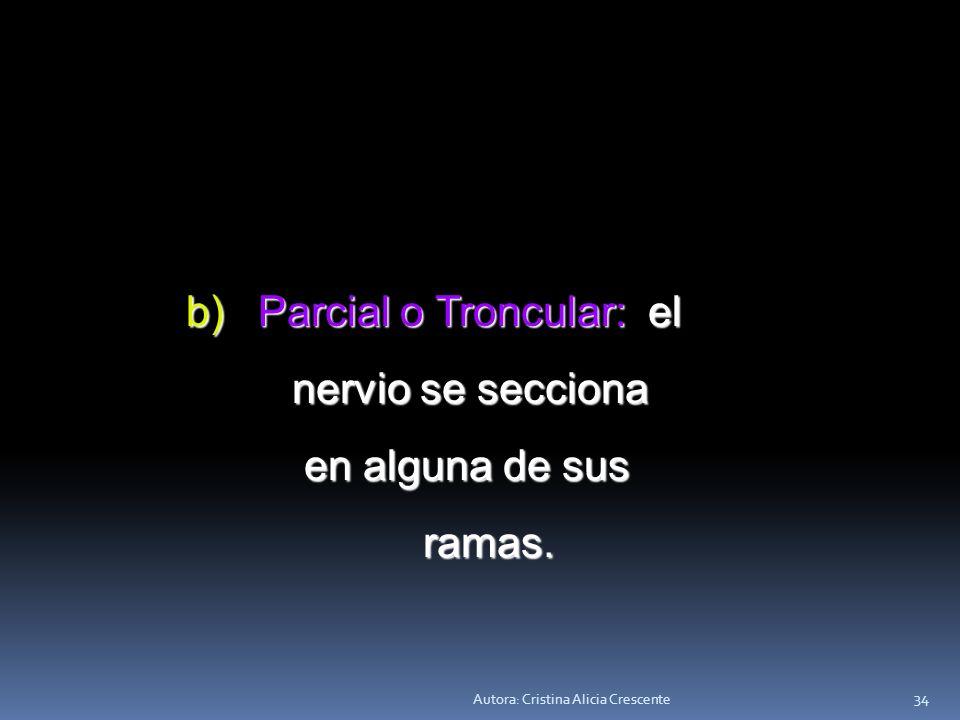 Autora: Cristina Alicia Crescente 33 VAGOTOMÍA: Consiste en seccionar Consiste en seccionar el nervio Vago. Puede ser total, parcial, o selectiva. a)
