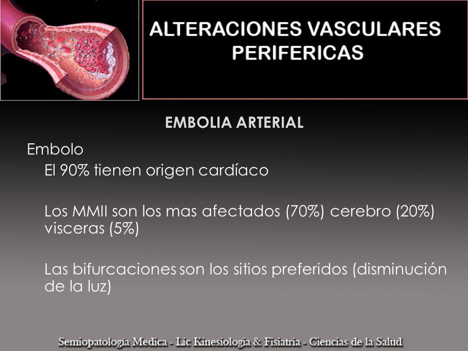 EMBOLIA ARTERIAL Embolo El 90% tienen origen cardíaco Los MMII son los mas afectados (70%) cerebro (20%) visceras (5%) Las bifurcaciones son los sitio