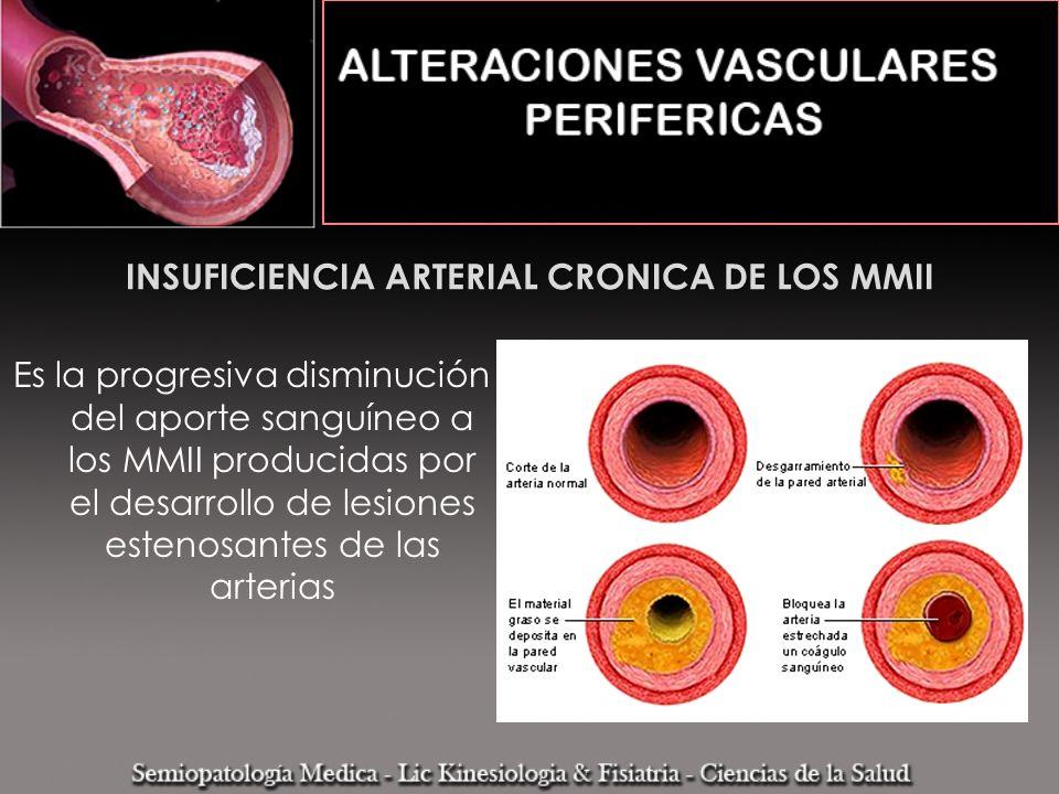 INSUFICIENCIA ARTERIAL CRONICA DE LOS MMII Es la progresiva disminución del aporte sanguíneo a los MMII producidas por el desarrollo de lesiones esten