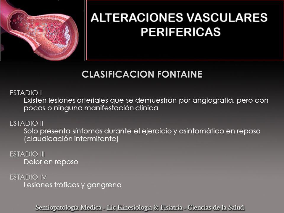 CLASIFICACION FONTAINE ESTADIO I Existen lesiones arteriales que se demuestran por angiografia, pero con pocas o ninguna manifestación clínica ESTADIO