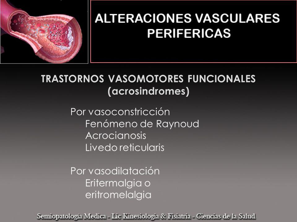 TRASTORNOS VASOMOTORES FUNCIONALES (acrosindromes) Por vasoconstricción Fenómeno de Raynoud Acrocianosis Livedo reticularis Por vasodilatación Eriterm