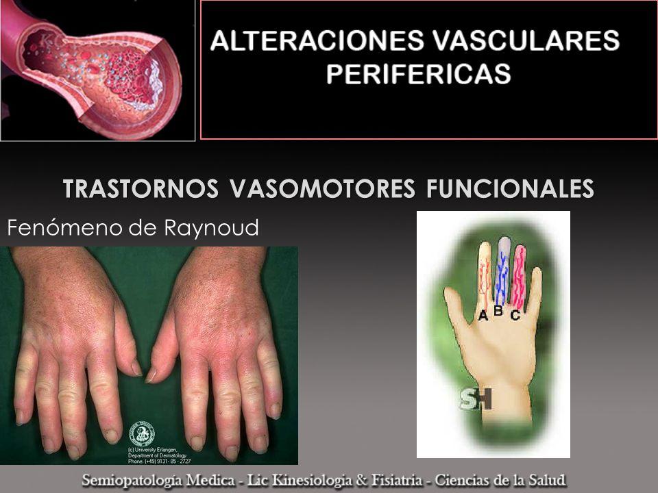 TRASTORNOS VASOMOTORES FUNCIONALES Fenómeno de Raynoud