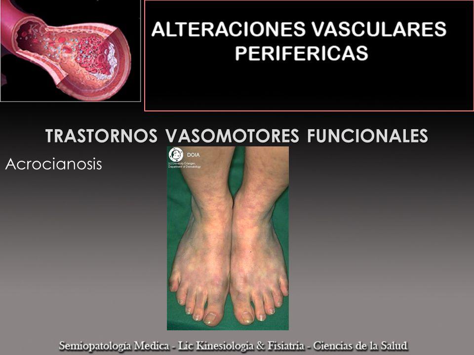 TRASTORNOS VASOMOTORES FUNCIONALES Acrocianosis