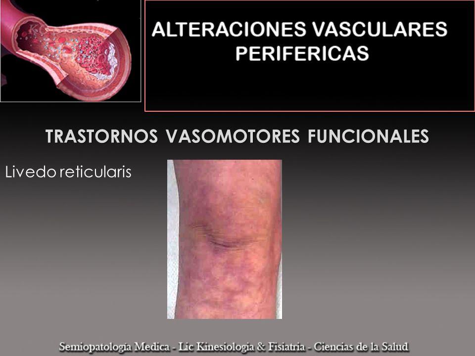 TRASTORNOS VASOMOTORES FUNCIONALES Livedo reticularis