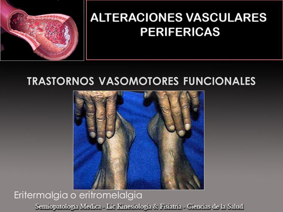 TRASTORNOS VASOMOTORES FUNCIONALES Eritermalgia o eritromelalgia