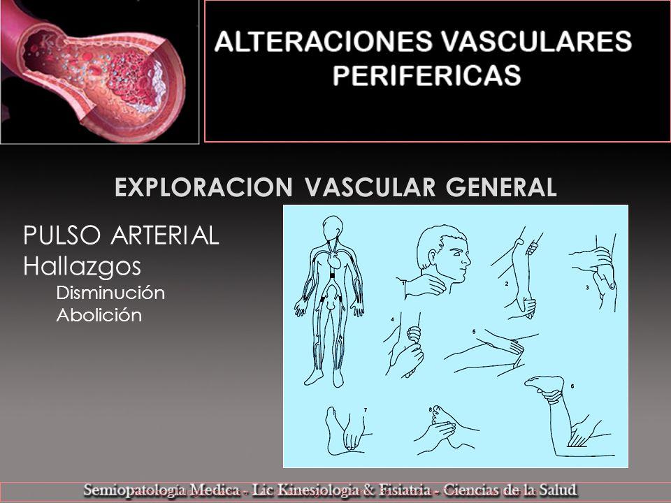 EXPLORACION VASCULAR GENERAL Maniobras Hallazgos Palidez, frialdad y claudicación http://www.academy.de/linksection/cva/01_cva/05_peripheral_artery_disease/sites/index06_03_04.html