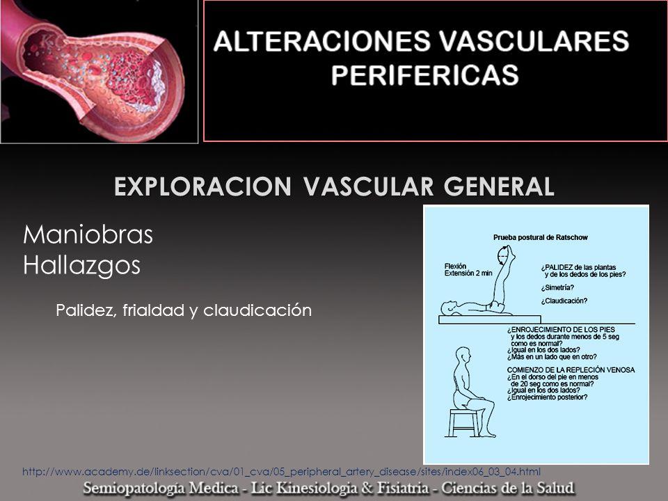 EXPLORACION VASCULAR GENERAL Maniobras Hallazgos Palidez, frialdad y claudicación http://www.academy.de/linksection/cva/01_cva/05_peripheral_artery_di