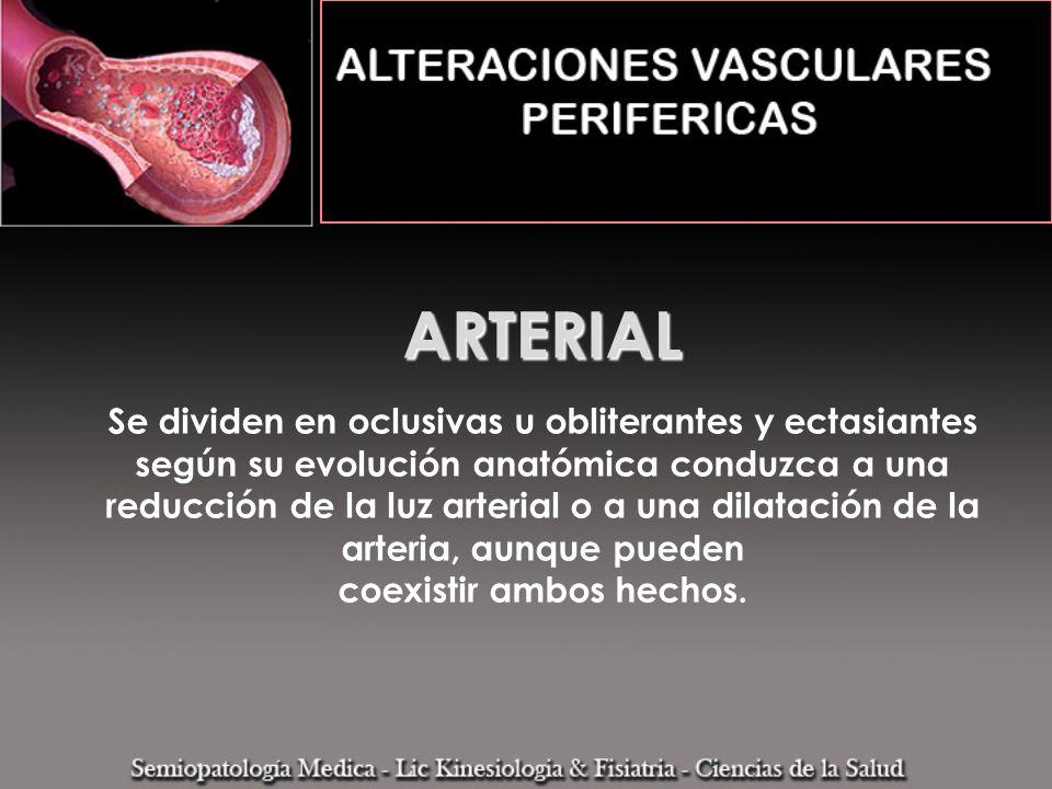 ARTERIAL ARTERIAL Se dividen en oclusivas u obliterantes y ectasiantes según su evolución anatómica conduzca a una reducción de la luz arterial o a un