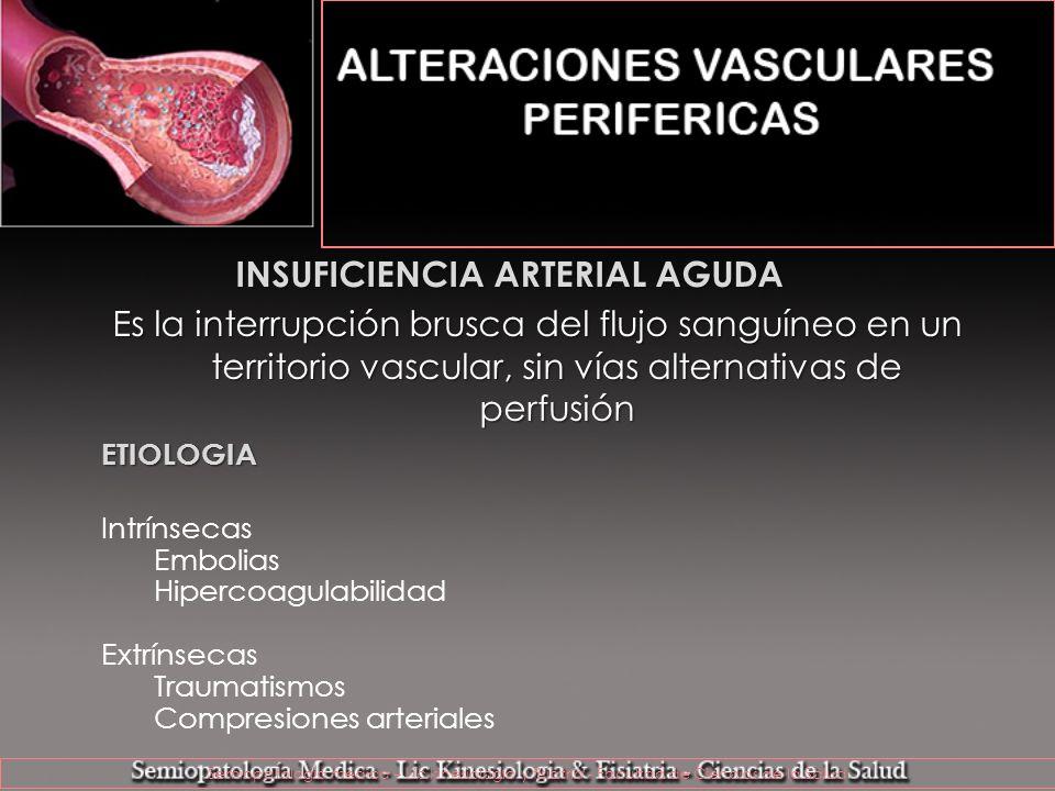 INSUFICIENCIA ARTERIAL AGUDA Es la interrupción brusca del flujo sanguíneo en un territorio vascular, sin vías alternativas de perfusión ETIOLOGIA Int