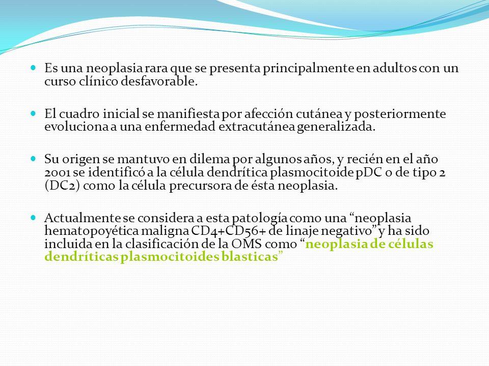 Conclusiones Las neoplasias CD4+CD56+lin- son raros.