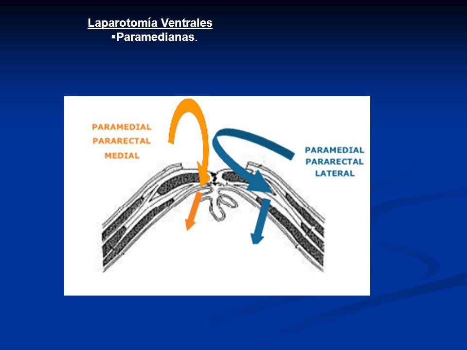 Laparotomía Ventrales Paramedianas.