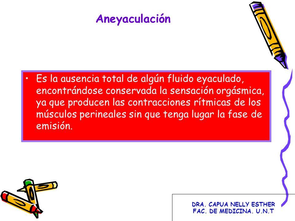 Aneyaculación Es la ausencia total de algún fluido eyaculado, encontrándose conservada la sensación orgásmica, ya que producen las contracciones rítmi