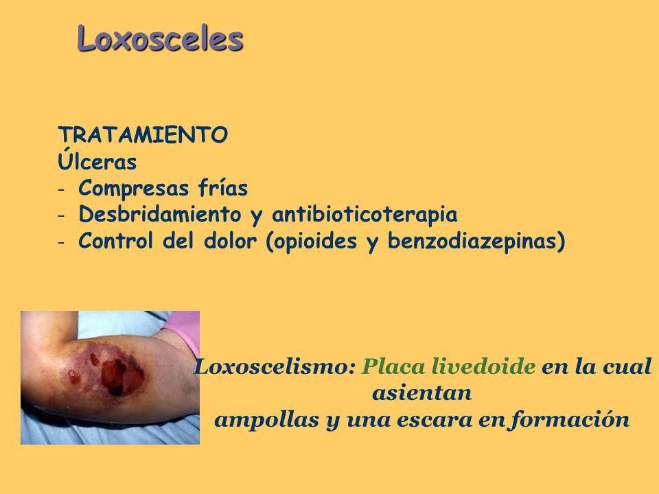 Loxosceles TRATAMIENTO Úlceras – Compresas frías – Desbridamiento y antibioticoterapia – Control del dolor (opioides y benzodiazepinas) Loxoscelismo: