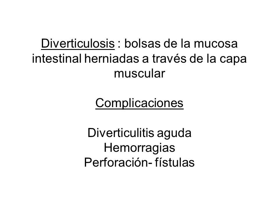 Diverticulosis : bolsas de la mucosa intestinal herniadas a través de la capa muscular Complicaciones Diverticulitis aguda Hemorragias Perforación- fí