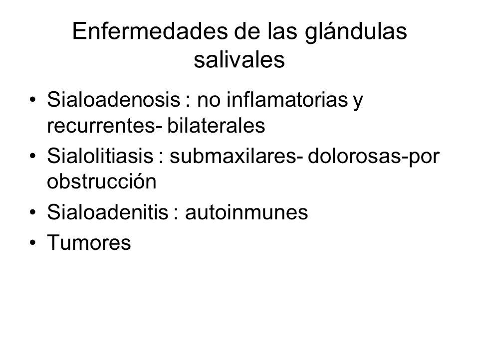 Enfermedades de las glándulas salivales Sialoadenosis : no inflamatorias y recurrentes- bilaterales Sialolitiasis : submaxilares- dolorosas-por obstru